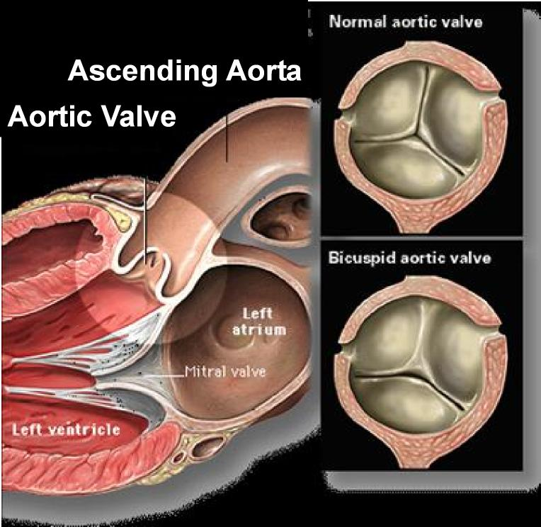Bicuspid Aortic Valves, Arnold Schwarzenegger, Aneurysms, and Me